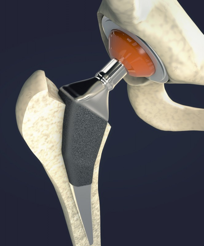 Zdjęcie - Endoproteza biodra