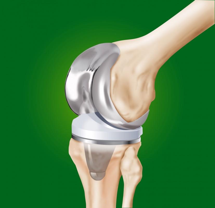 Zdjęcie - Endoproteza kolana
