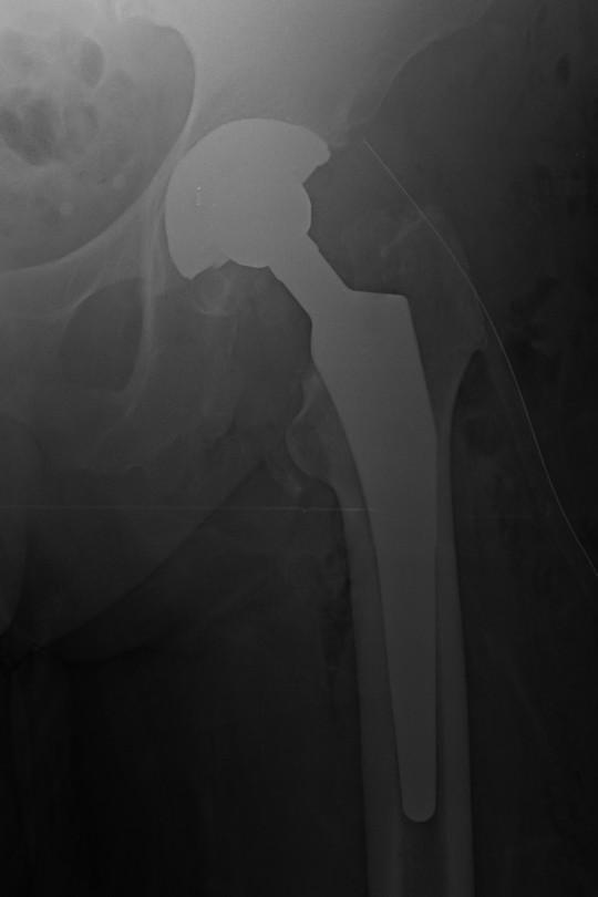 Endoproteza biodra 6 - zdjęcie po