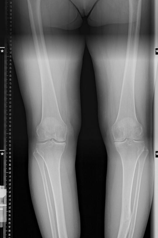 Osteotomia kolana 5 - zdjęcie przed