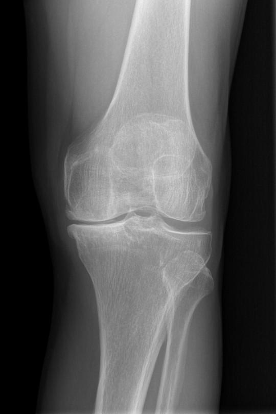 Osteotomia kolana 1 - zdjęcie przed