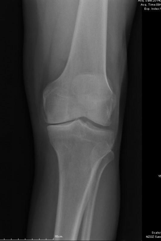 Osteotomia kolana 3 - zdjęcie przed