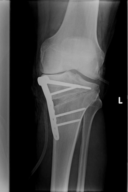 Osteotomia kolana 3 - zdjęcie po