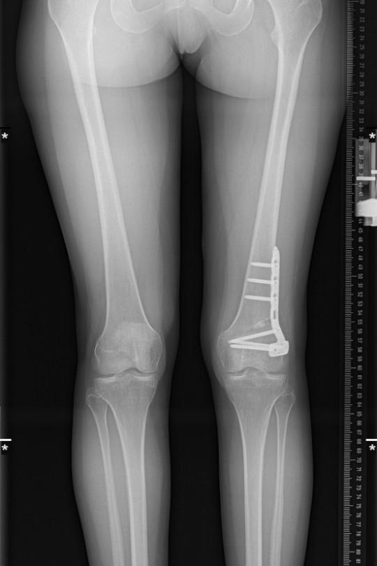 Osteotomia kolana 6 - zdjęcie po