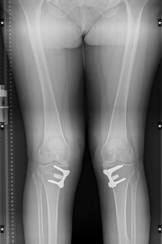 Osteotomia kolana 5 - zdjęcie po